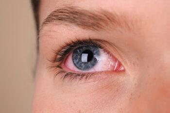 olhos vermelhos banho de piscina